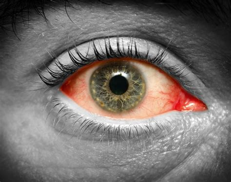 Star-Shaped Cataracts; Electric Shock Causes Bizarre Star