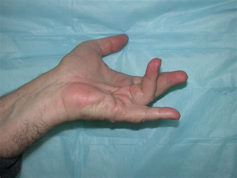 Discovery of New Treatment for Hand Disorder Affecting