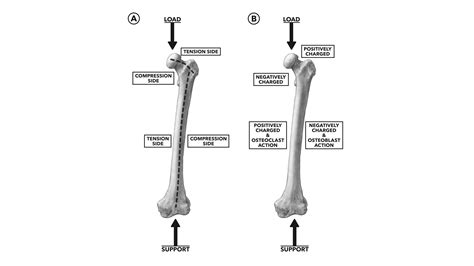 CrossFit   Bone Deposition and Osteoporosis